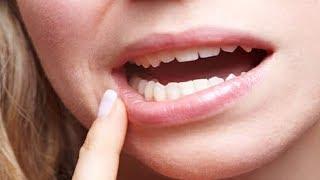 видео Как убрать зубные камни и избавиться от налета в домашних условиях: народные рецепты и профилактические меры