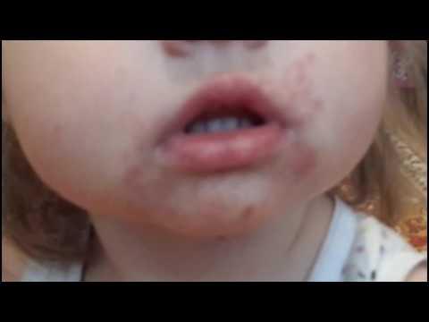 Сыпь на теле у ребенка - Сыпи(высыпания)