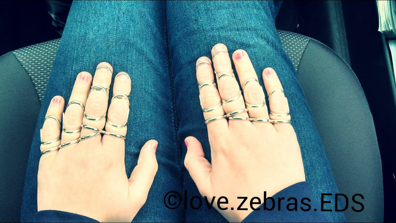 Ehlers Danlos Syndrome and Silver Ring Splints - YouTube