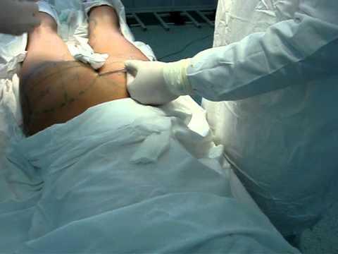 Увеличение молочных желёз, импланты для груди «ММЦ Клиника Максимед»