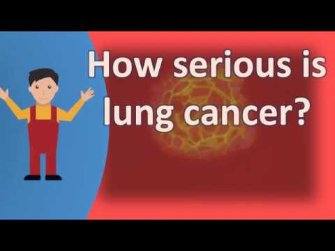 how-serious-is-lung-cancer-?-|frequently-ask-questions-on-health