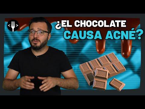 ¿El Chocolate causa acné? | Código Espagueti Al Servicio de la Comunidad