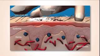 Dermatologie Psoriasis voorlichting