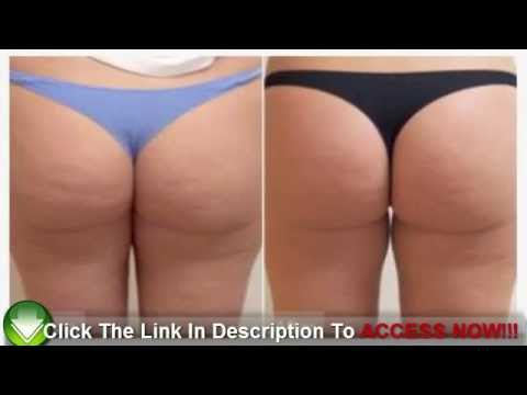 the-at-home-cellulite-treatment-to-get-rid-of-cellulite