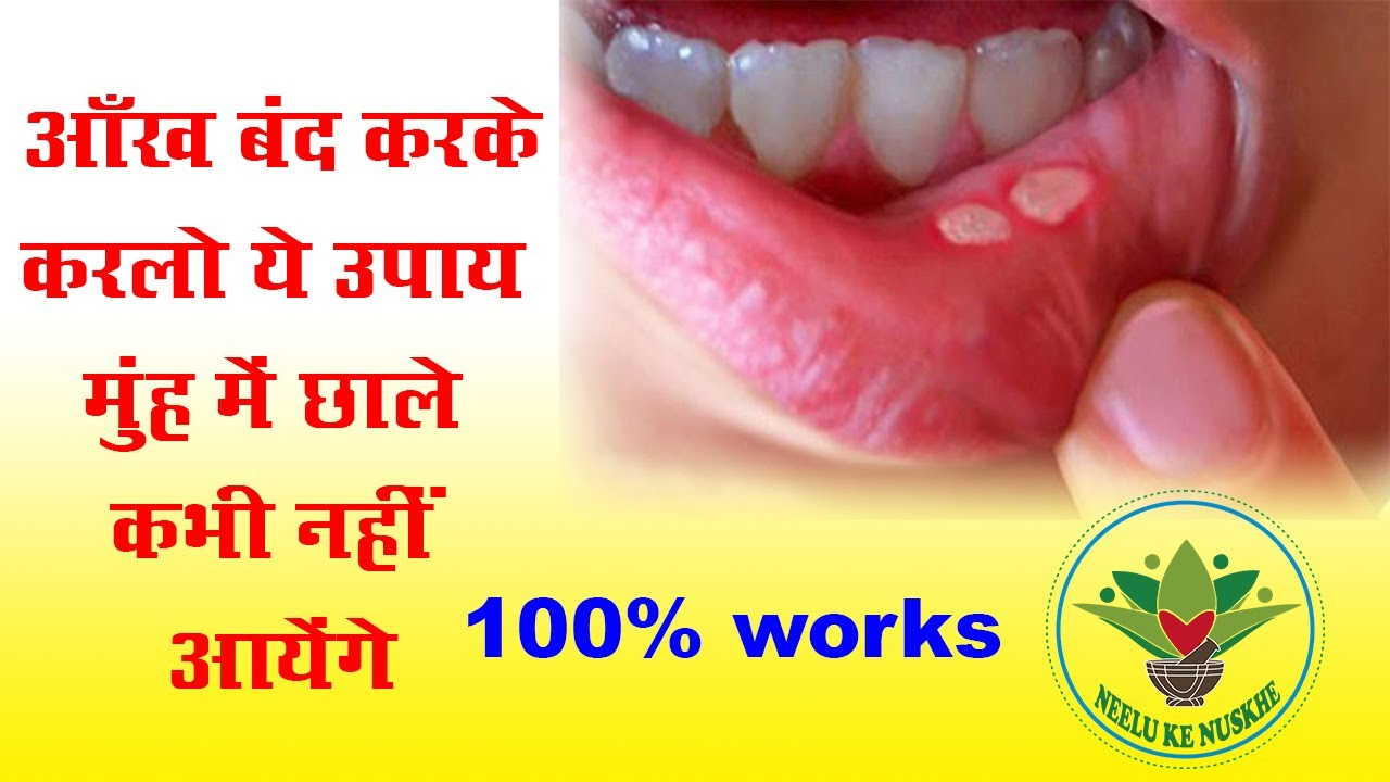 what to do for an ulcer in your mouth