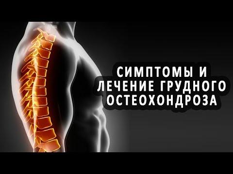 Симптомы и лечение грудного остеохондроза