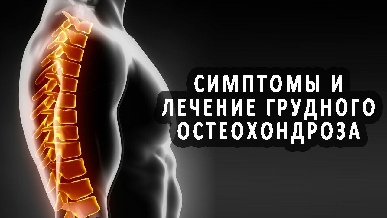 Симптомы поясничного остеохондроза и лечение