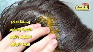 وصفة لعلاج الثعلبة والشعر الخفيف بالثوم وزيت الزيتون