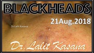 ANTI ACNE TREATMENT PART-2 BY DR LALIT KASANA(15-08-2018) - Dr Lalit