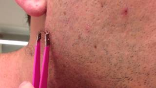The Longest Grossest Ingrown Hair In History thumbnail