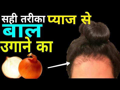 How to use Onion Juice for hair regrowth faster | Onion juice लगाने का सही तरीका बालो में