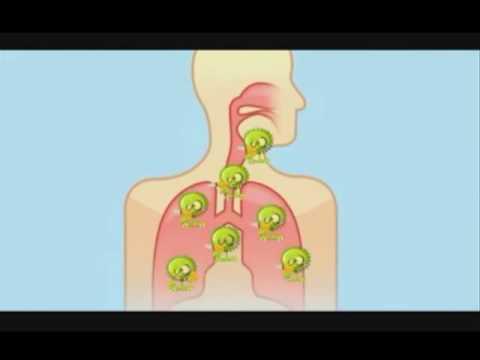 La Influenza Y Sus Síntomas