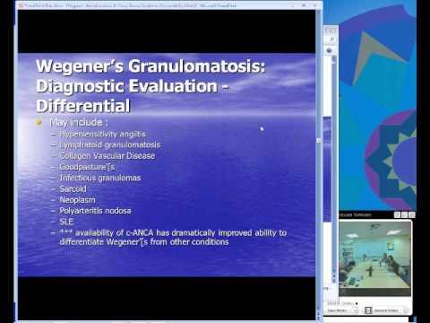Wegener's Granulomatosus and Churg Strauss Syndrome (Dowling)