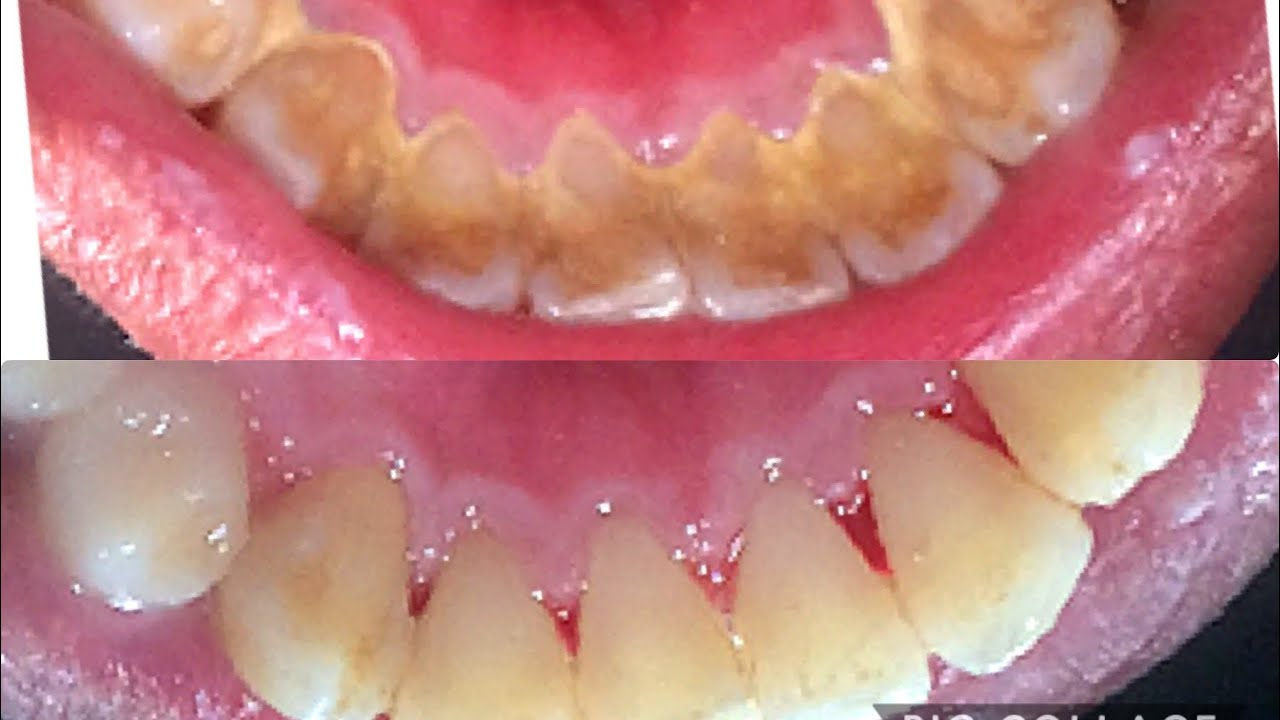 Tartar removal | Calculus removal | Dental Plaque Removal