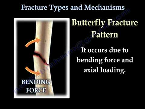 Fractures, Types And Mechanisms - Everything You Need To Know - Dr. Nabil Ebraheim