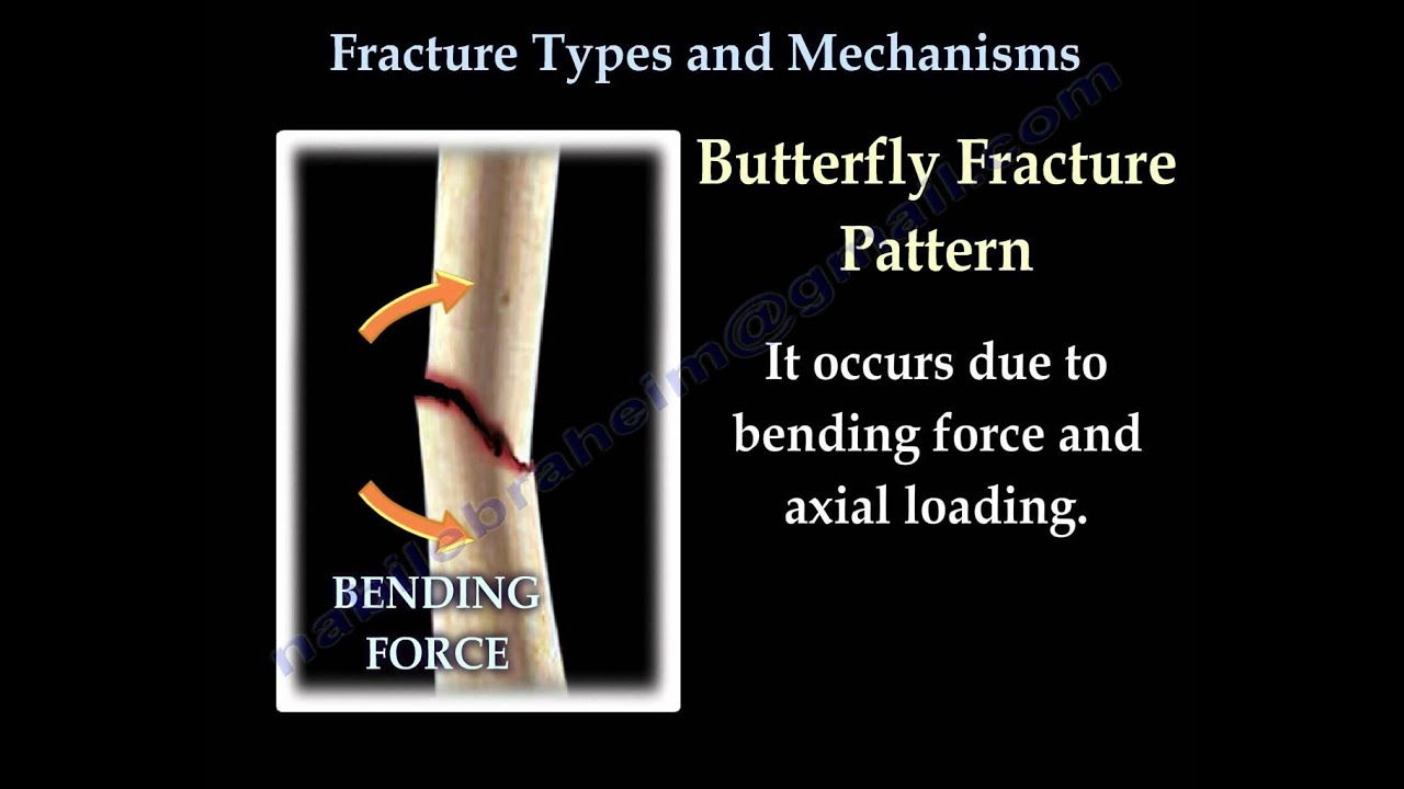 Fractures Types And Mechanisms Everything You Need To Know Dr