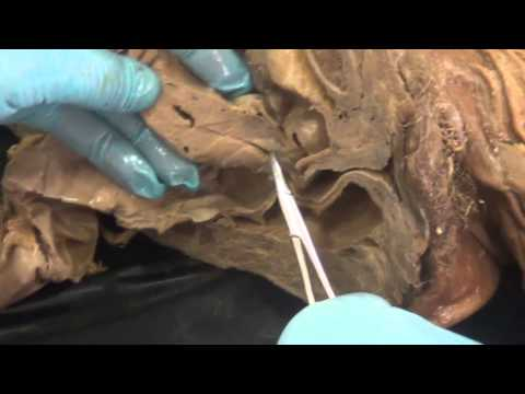 ◄╣ Anatomy Lab Revision Part - 8 ♦ Sagittal Section in a Female Pelvis (I) ╠►
