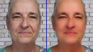 65 Year Old Tries Instant Wrinkle Cream for her Under Eye Bags.