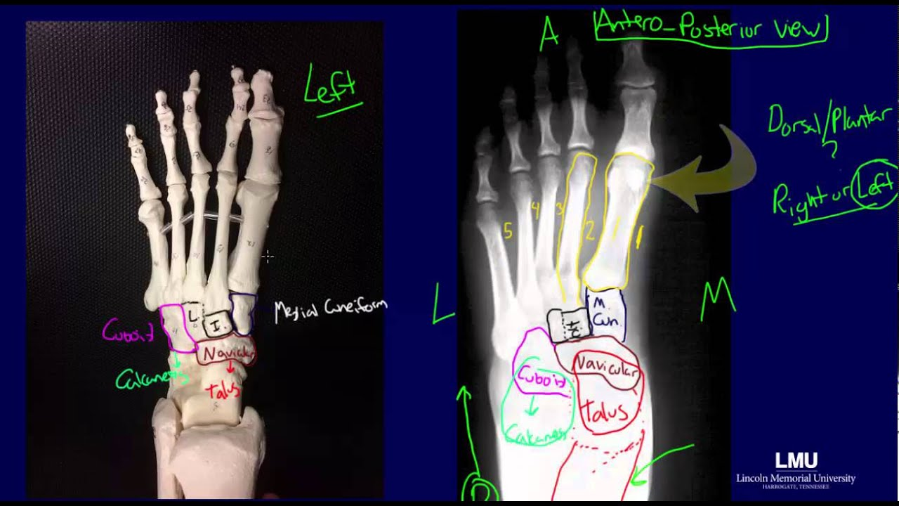 Radiographic Anatomy Of The Foot Youtube