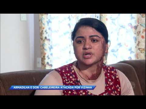 Mulher fica irreconhecível após ser atacada pela vizinha com óleo quente