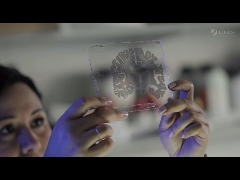 Das Human Brain Project