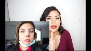 EXPERIENCIA DE RINOPLASTIA, LIPO FACIAL Y PAPADA | RESULTADOS 4 MESES DESPUES