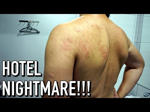 KUALA LUMPUR HOTEL NIGHTMARE - BED BUG INFESTATION! | Sasana Hotel Petaling Street KL