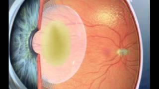 Trachoma part 2.