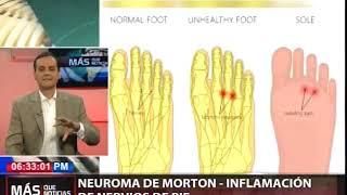 Intenso superior parte del pie dolor hinchazón