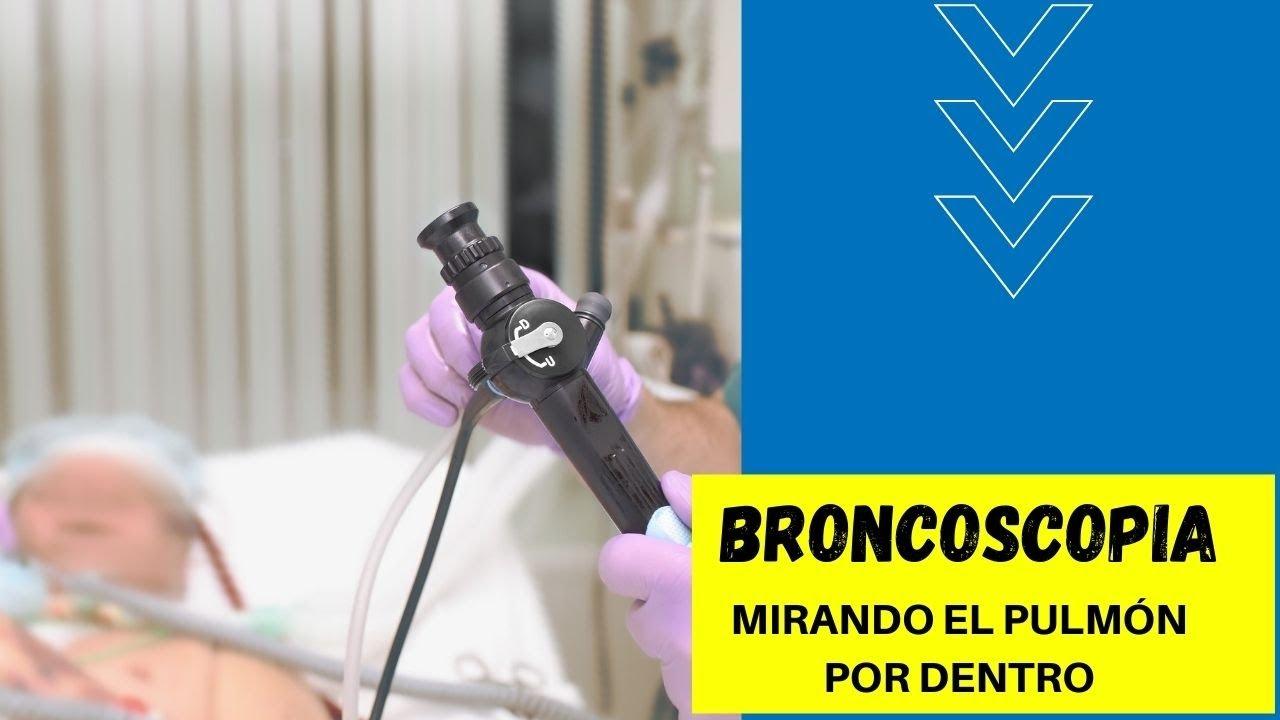 Broncoscopia, mirando el pulmón por dentro