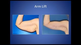 arm lift brachioplasty surgery results in austin from synergy plastic surgery