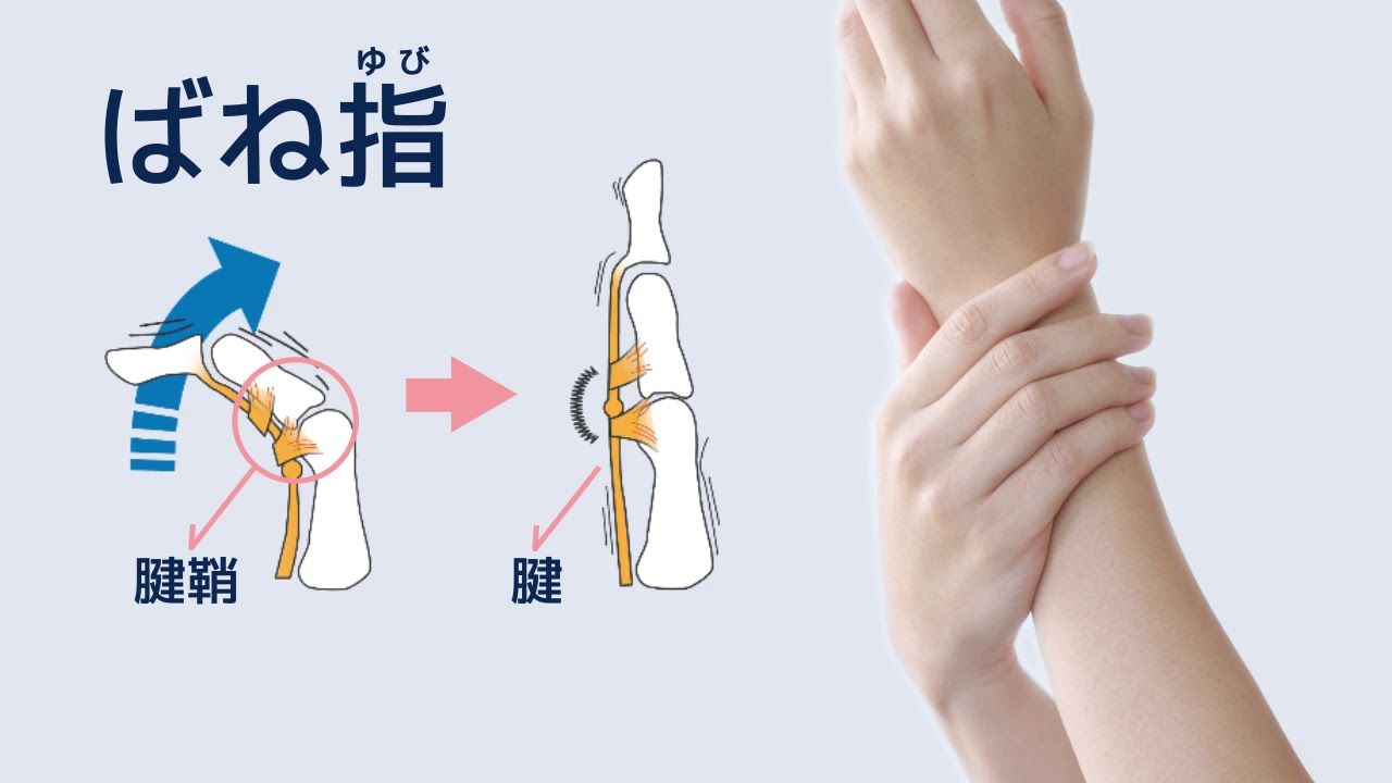 痛い が 親指 の 左手 付け根
