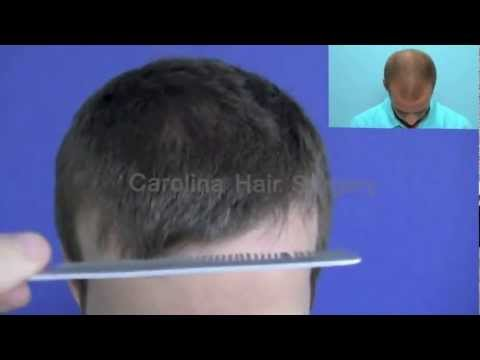 FUE Hair Transplant Before & After | Carolina Hair Surgery