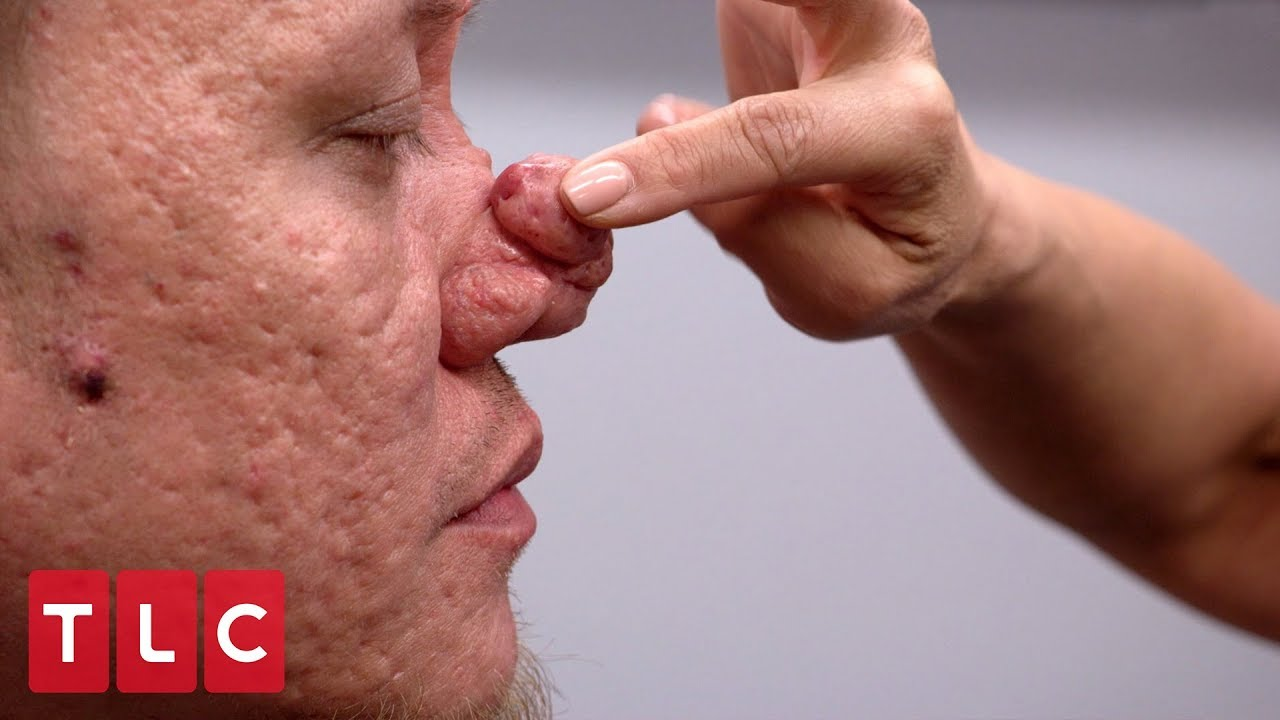 This Man S Bumps On His Nose Are Becoming A Burden Dr Pimple Popper