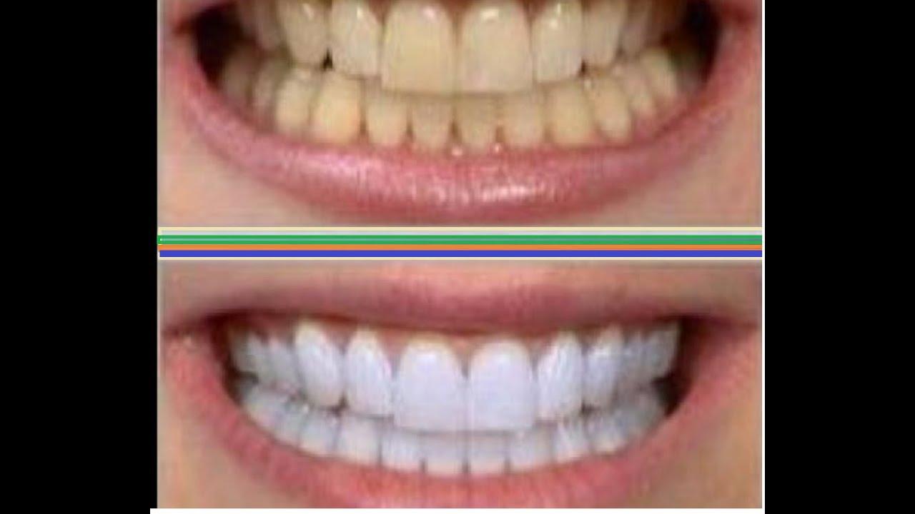 Clareamento Dental Caseiro Dentes Brancos Youtube