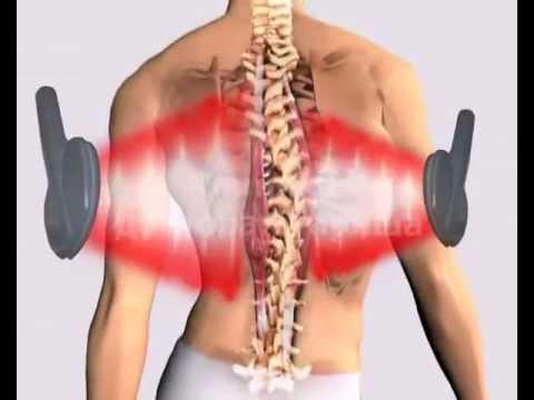 Физиотерапия при шейном остеохондрозе - отзывы