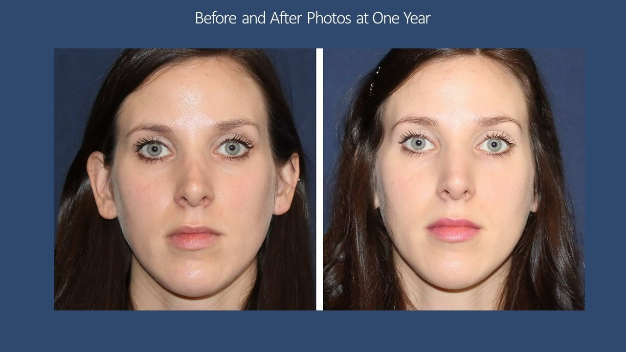 BELLAFILL: Permanent Filler by Seattle Injection Expert