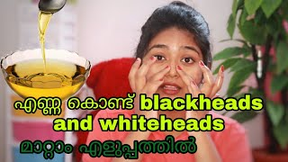 👃How To Remove Blackheads From Nose at Home _blackheads and whiteheads പെട്ടന്ന് മാറ്റാം