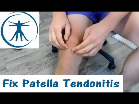 How to FIX Knee Pain (Patella Tendonitis) with Correction Exercises