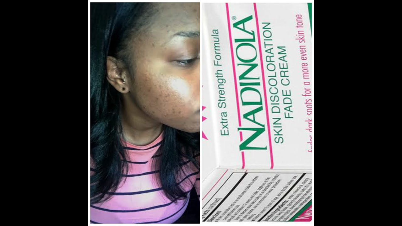 Nadinola Skin Lightener And Fading Cream Severe Acne Youtube