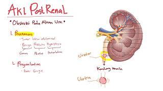 Video ini membantu kita belajar mengenai patofisiologi dari AKI atau acute kidney injury atau dalam .