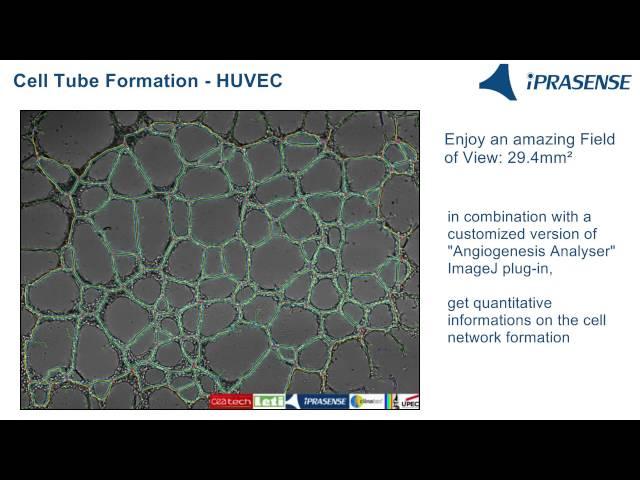 Cell Tube Formation - HUVEC on Matrigel
