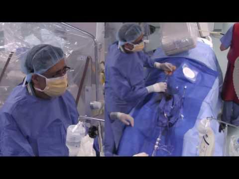 Live Case: Left Atrial Apendage Closure Iqbal CSI June 2016