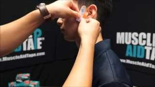 MuscleAidTape: TMJ & Jaw Pain