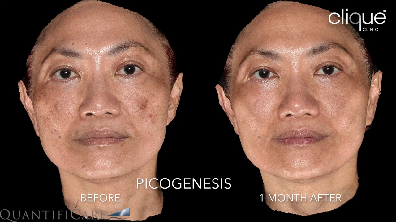 Clique Clinic PICOGenesis Before & After