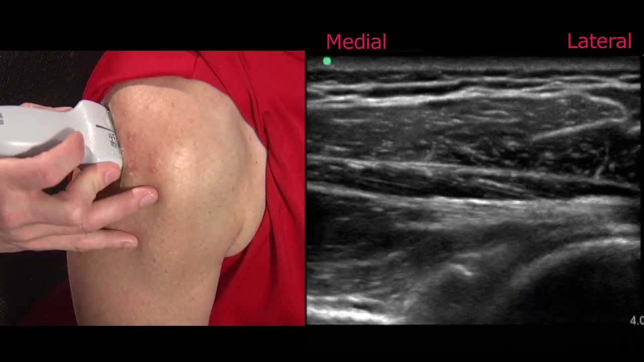 Ultrasound Of The Shoulder Youtube