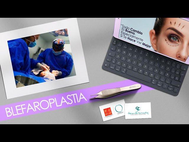 Blefaroplastia o Rejuvenecimiento de la mirada o Cirugía de Párpados Bogotá