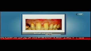كيفية تعامل شايني وايت مع حالات زراعة الأسنان