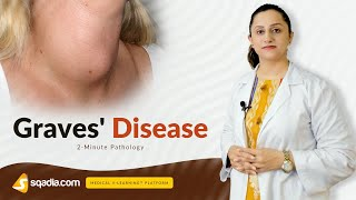 Primary adrenal insufficiency (Addison's disease) - an Osmosis preview.