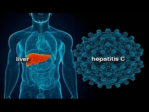 рнк вируса гепатита с полуколичетвенное исследование